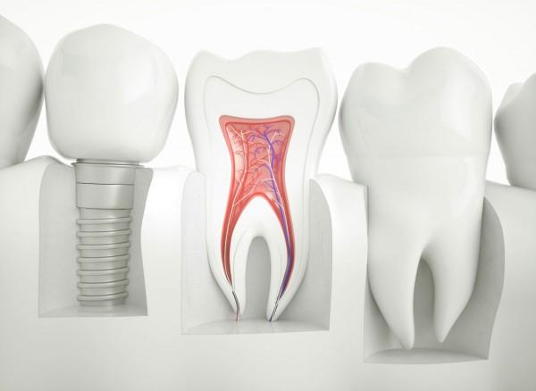 Diş İmplantlarının Bakımı Nasıl Yapılmalı