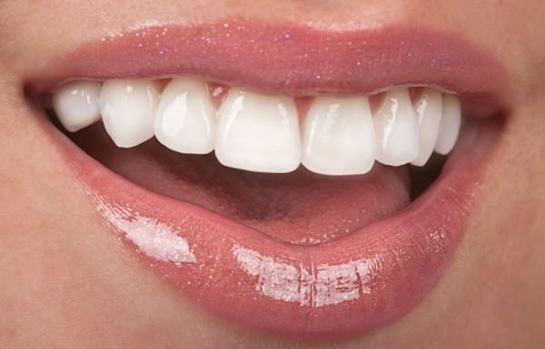 Doğal Görünümlü Lamine Diş Kaplamaları
