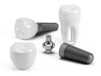 bir günde implant diş tedavisi