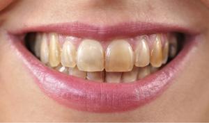 diş lekeleri sararmış dişler