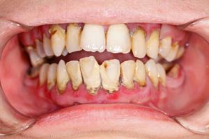 diş taşı tartar