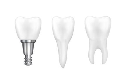 implant diş kliniği