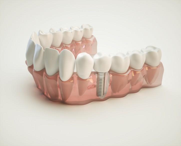 implant diş istanbul