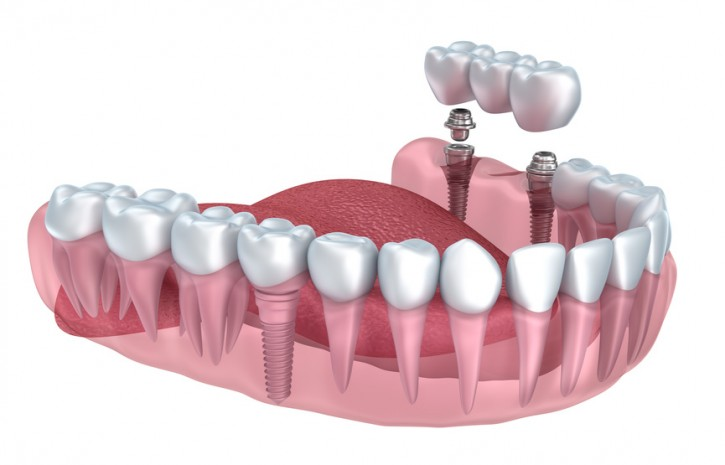 implant diş nedir