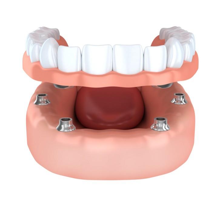 implant üstü protez damak diş