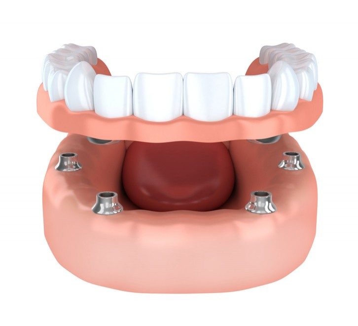 implant protez diş