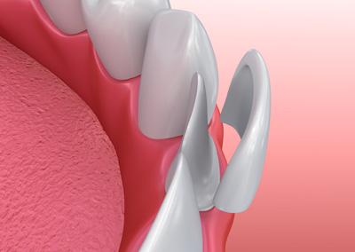 ayrık diş kapatılması laminate veneer