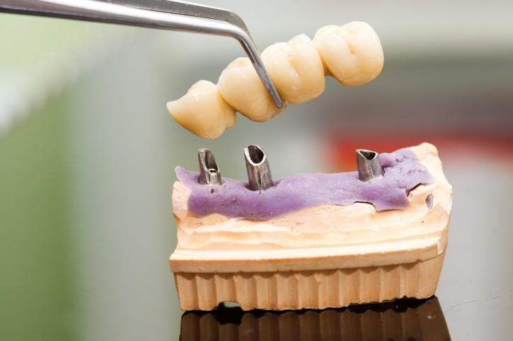 zirkonyum implant diş